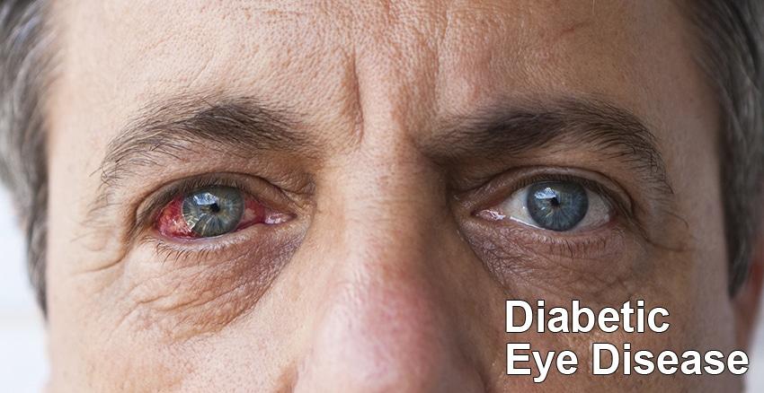 diabetic eye disease treatments
